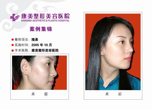 隆鼻手术前后效果对比图3