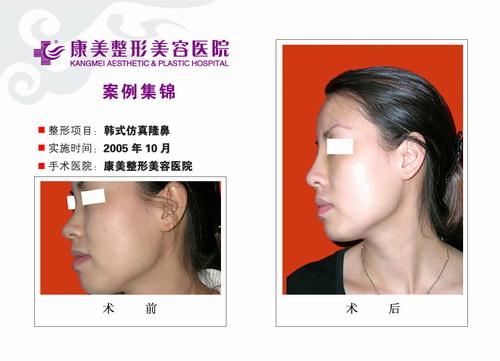 韩式无痕隆鼻手术前后效果对比图