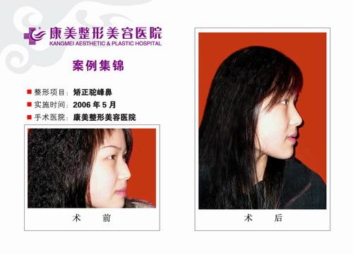 矫正驼峰鼻手术前后效果对比图