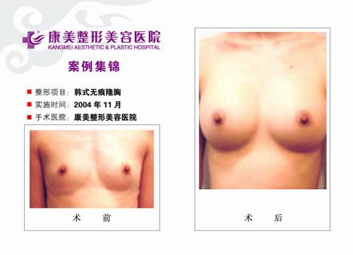 隆胸手术前后效果对比图