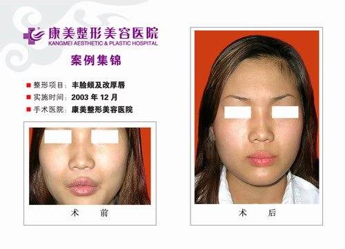 丰脸颊及改厚唇手术前后效果对比图