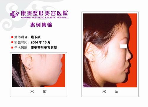 丰下颌手术前后效果对比图