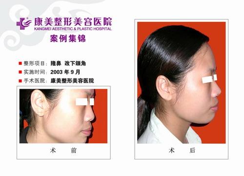 改下颌手术前后效果对比图