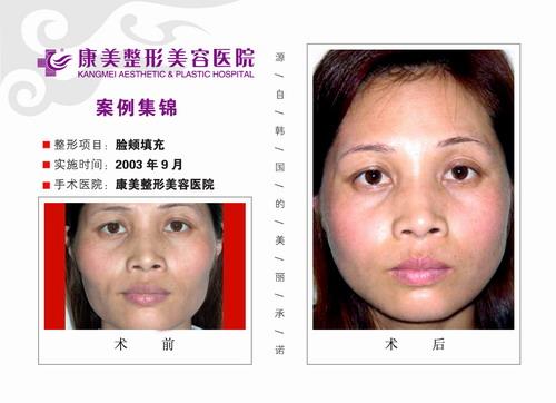 面颊填充手术前后效果对比图