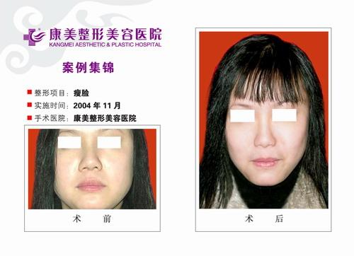 瘦脸手术前后效果对比图