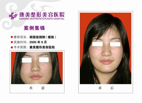 瘦脸手术前后效果对比图2