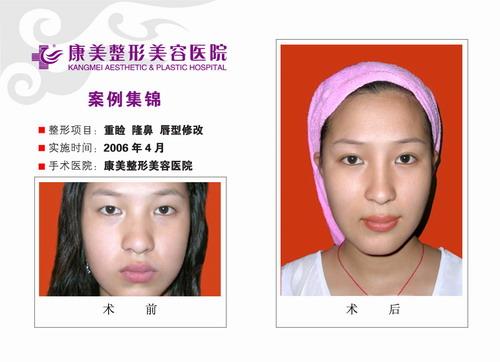 双眼皮成形,隆鼻,改唇,改眉手术前后效果对比图