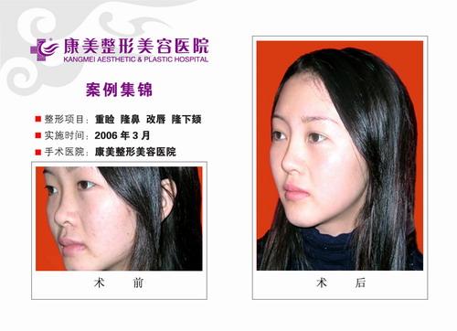 双眼皮成形,隆鼻,改唇,隆下颏手术前后效果对比图