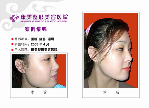 双眼皮成形,隆鼻,改下颌角,漂唇手术前后效果对比图