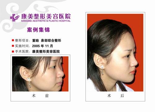 重睑,鼻部综合整形手术前后效果对比图