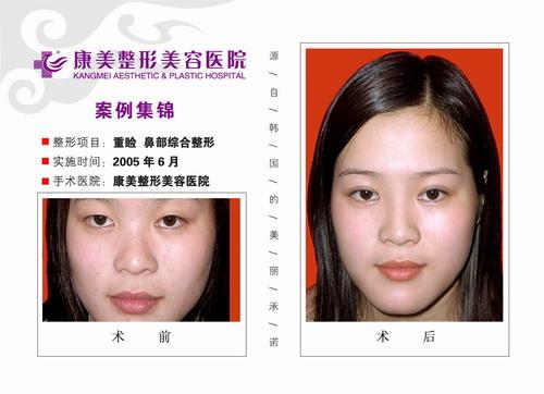 重睑术,鼻部综合整形手术前后效果对比图