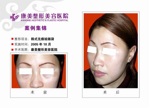 韩式无痕祛眼袋手术前后效果对比图