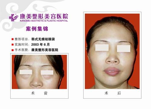 韩式无痕祛眼袋手术前后效果对比图2
