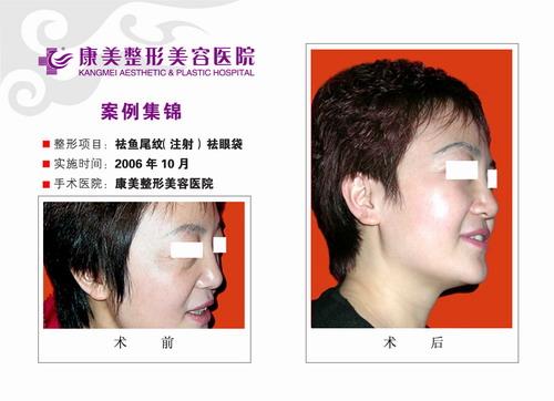 去鱼尾纹,去眼袋手术前后效果对比图