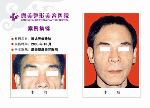 除皱手术前后效果对比图