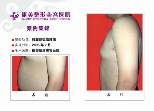 腰部吸脂,腹部吸脂手术前后效果对比图