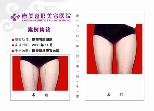 大腿吸脂手术前后效果对比图