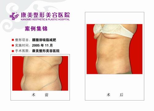 腰部吸脂,腹部吸脂手术前后效果对比图3