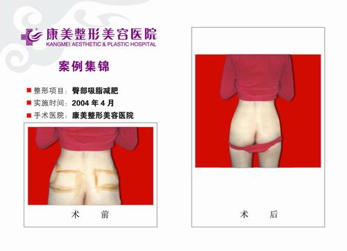 臀部吸脂手术前后效果对比图