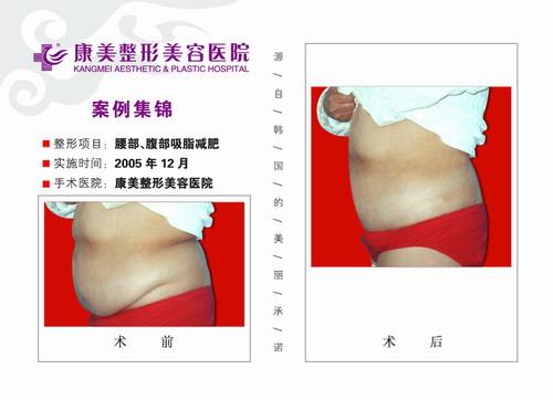 腰部吸脂,腹部吸脂手术前后效果对比图4