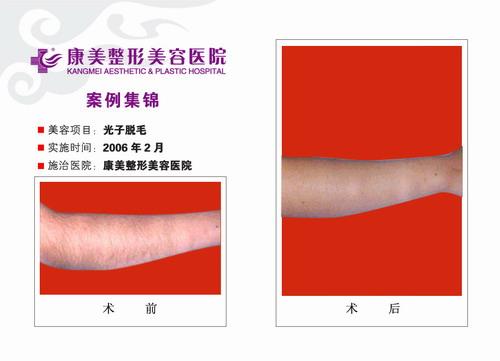 手臂光子脱毛手术前后效果对比图