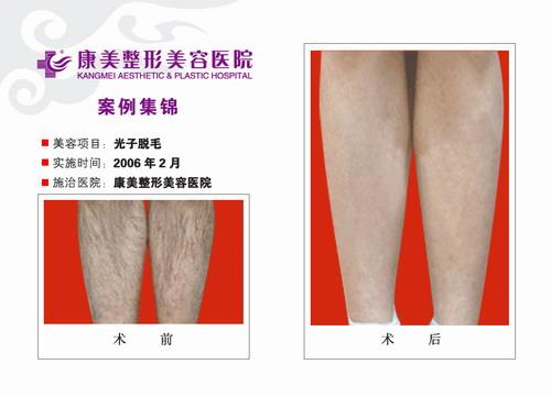 腿部光子脱毛手术前后效果对比图