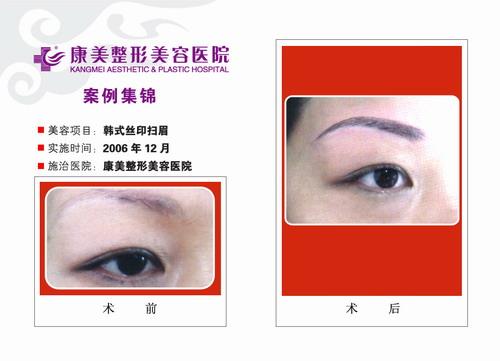 韩式丝印扫眉手术前后效果对比图