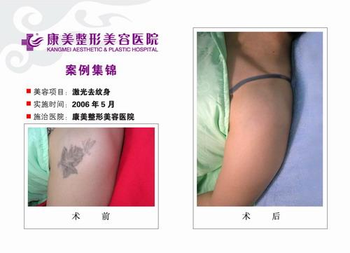 激光去纹身手术前后效果对比图