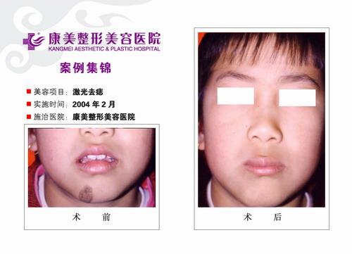 激光去痣手术前后效果对比图2