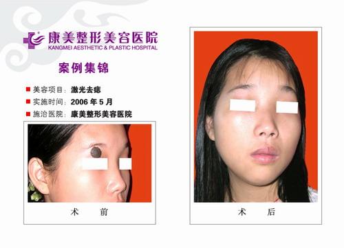 激光去痣手术前后效果对比图3