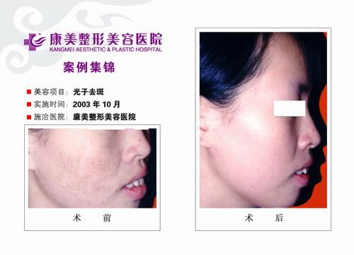 激光去斑手术前后效果对比图
