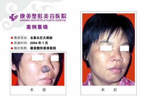 去鼻头巨大黑痣手术前后效果对比图