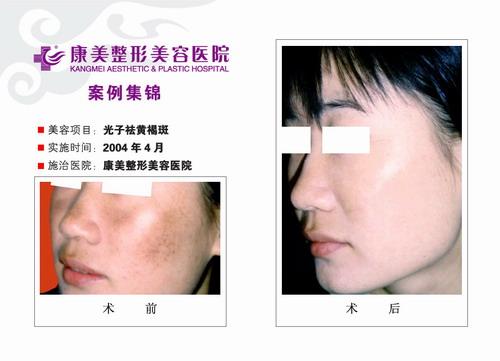 光子去黄褐斑手术前后效果对比图