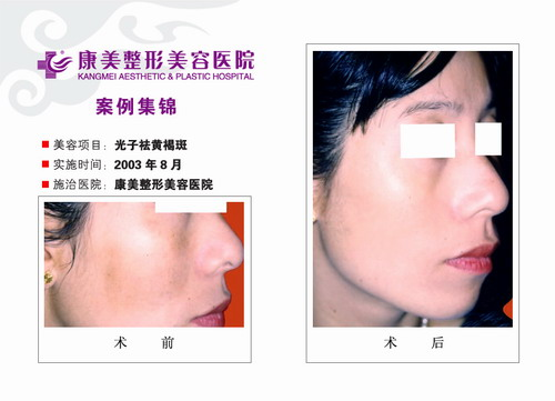 光子去黄褐斑手术前后效果对比图2