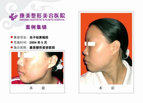 光子去黄褐斑手术前后效果对比图4