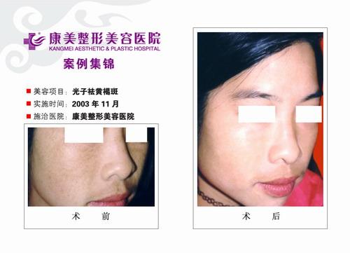光子去黄褐斑手术前后效果对比图6