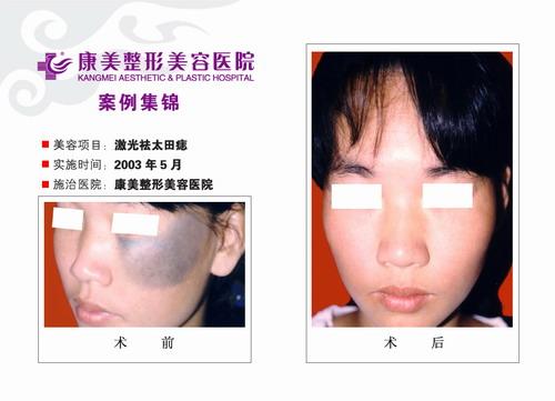 激光去太田痣手术前后效果对比图