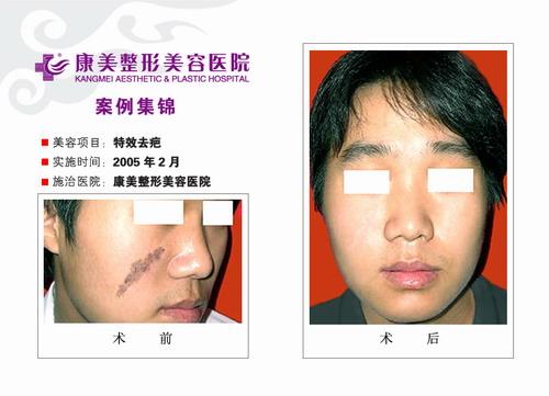特效去疤手术前后效果对比图