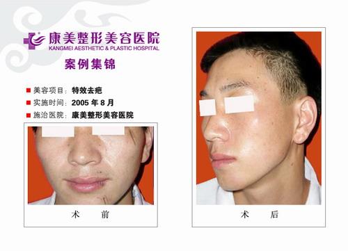 特效去疤手术前后效果对比图2