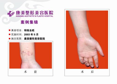 特效去疤手术前后效果对比图3