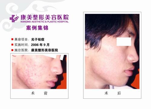 光子特效去痘手术前后效果对比图