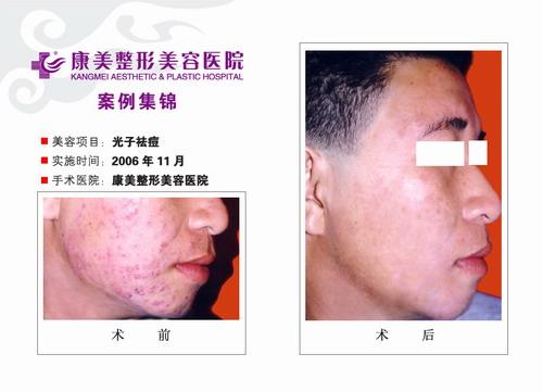 光子特效去痘手术前后效果对比图2