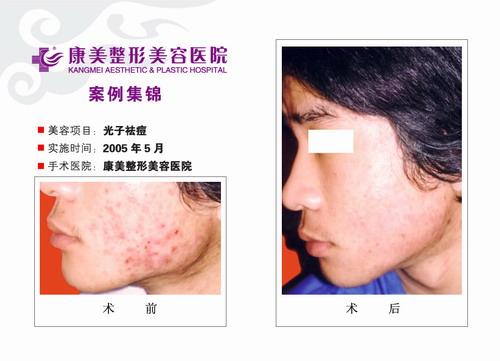 光子特效去痘手术前后效果对比图3