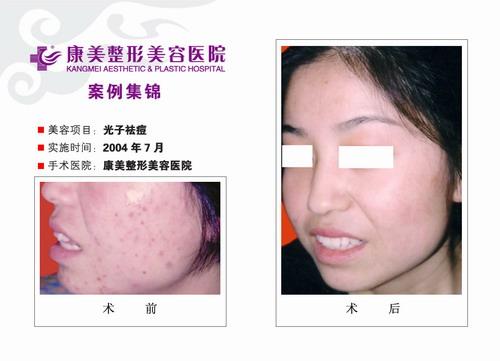 光子特效去痘手术前后效果对比图4