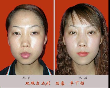 双眼皮成形,改唇,丰下颌手术前后效果对比图