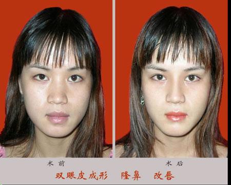 双眼皮,垫高鼻梁,改唇手术前后效果对比图