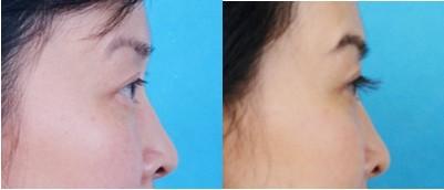 睫毛移植手术前后效果对比图