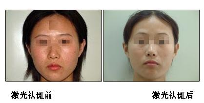 激光祛斑手术前后效果对比图