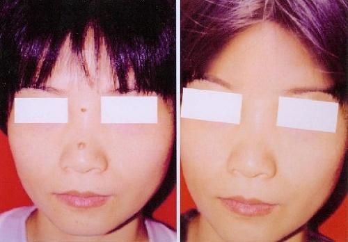 激光祛痣手术前后效果对比图