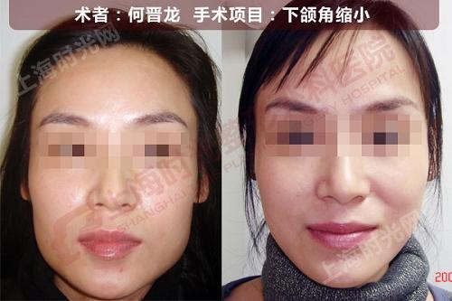 下颌角缩小手术前后效果对比图
